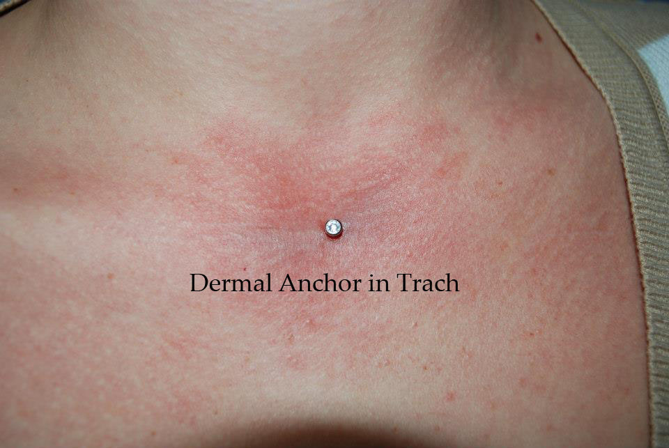 centerchestdermal copy.jpg