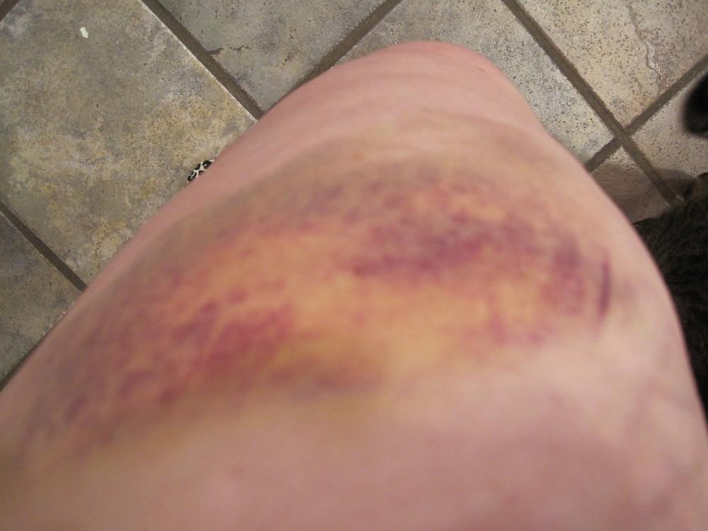 Derby dogpile bruises 5 2010 (1).JPG