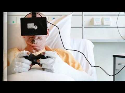 VR-therapy is used to treat burn victims in order to help alleviate pain