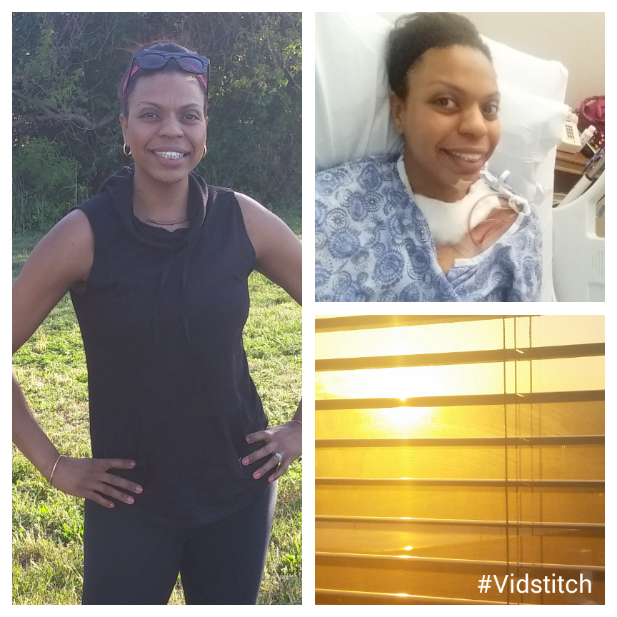 A ray of sunshine the day after my surgery!  On the left is me a few days later enjoying a walk in the park.