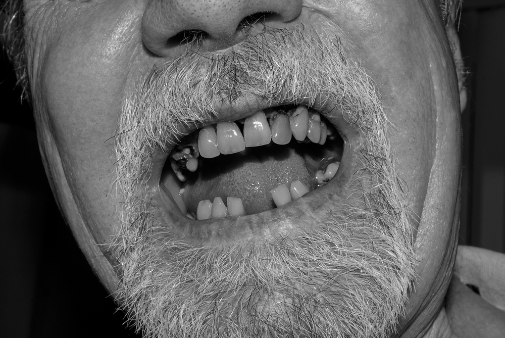 Teeth   2008