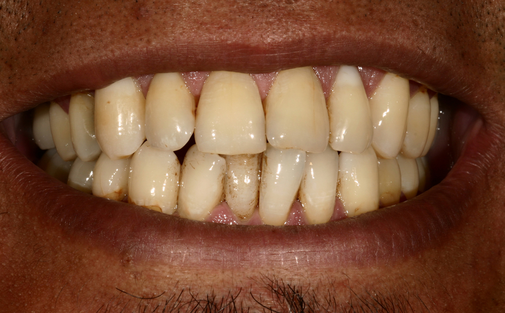 Case 2 before.jpg