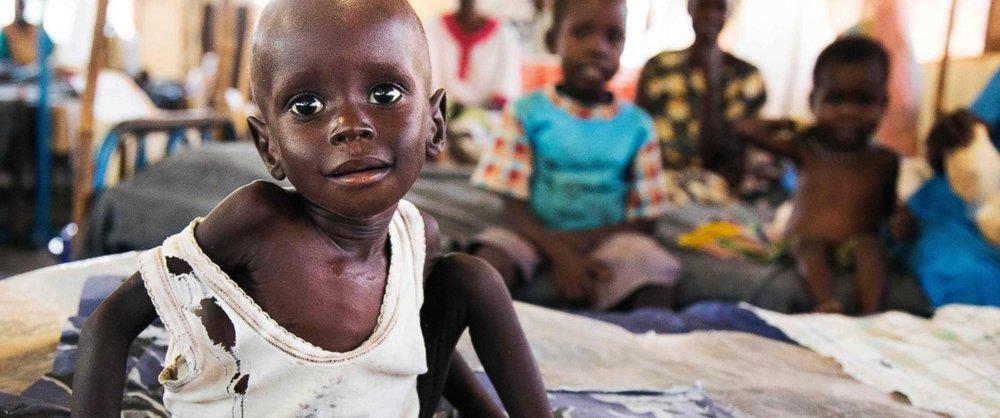 South Sudan Starving Children