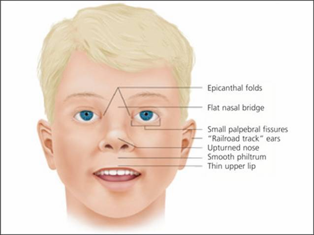 "A graphic that shows common anomalies generally present with FASD. The graphic showcases the following facial features.   * Epicanthal folds    * Flat nasal bridge    * Small palpebral fissures    * ""Railroad track"" ears    * Upturned nose    * Smooth philtrum    * Thin upper lip"