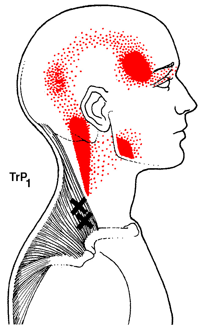 Trigger Point Referral pattern