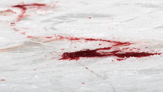 Les accidents font parti du hockey. Grâce à l'aide obtenu de ses frères de la LFA, la blessure de Ludovic Hélias a pu être maitrisée jusqu'à l'arrivée des ambulanciers. (Photo google)