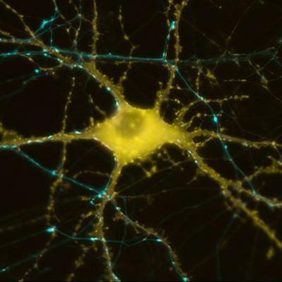 Synaptogenesis.jpg