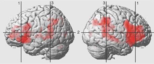3-MRI-increasedblood.jpg