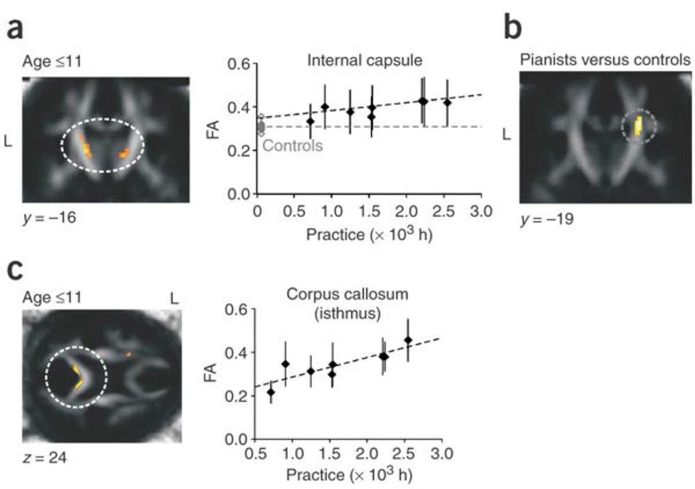 Bengtsson et al. Nature Neuroscience 8:1148-1150, 2005