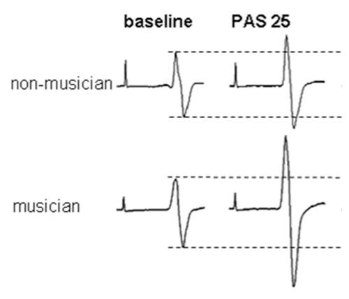 Rosenkranz et al. Journal of Neuroscience, 27:5200-5206, 2007