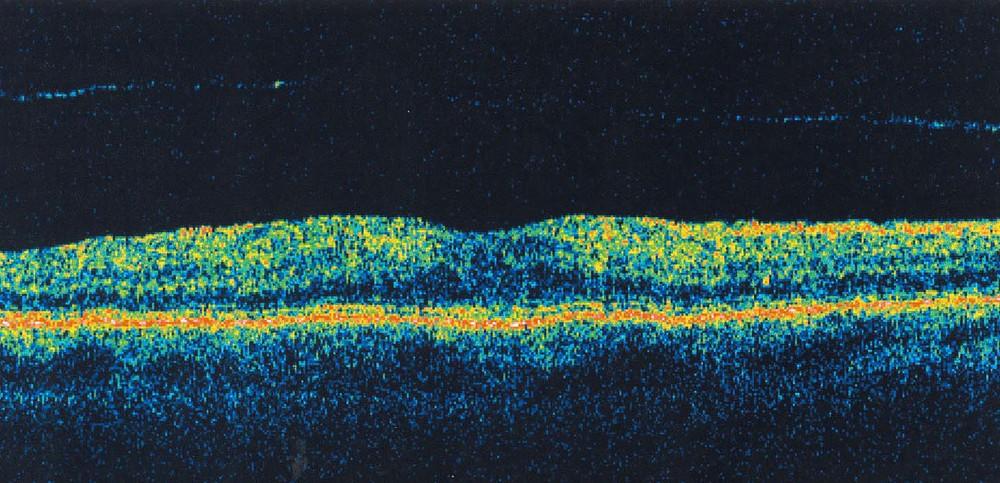 OCT imaging at Brad Abrahams