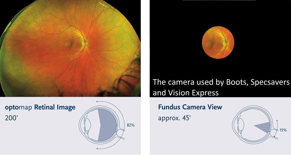 Optomap imaging at Brad Abrahams