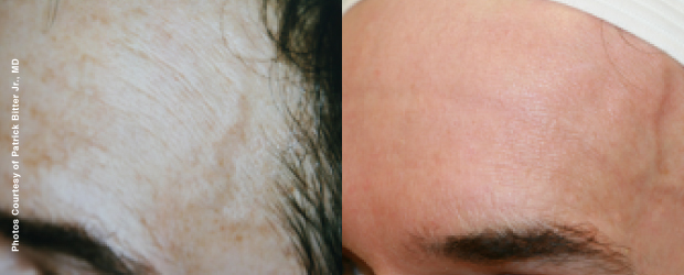 Before treatment 43 years old                                                        After treatment 55 years old  After 12 years of Forever Young BBL treatments, the skin looks younger...