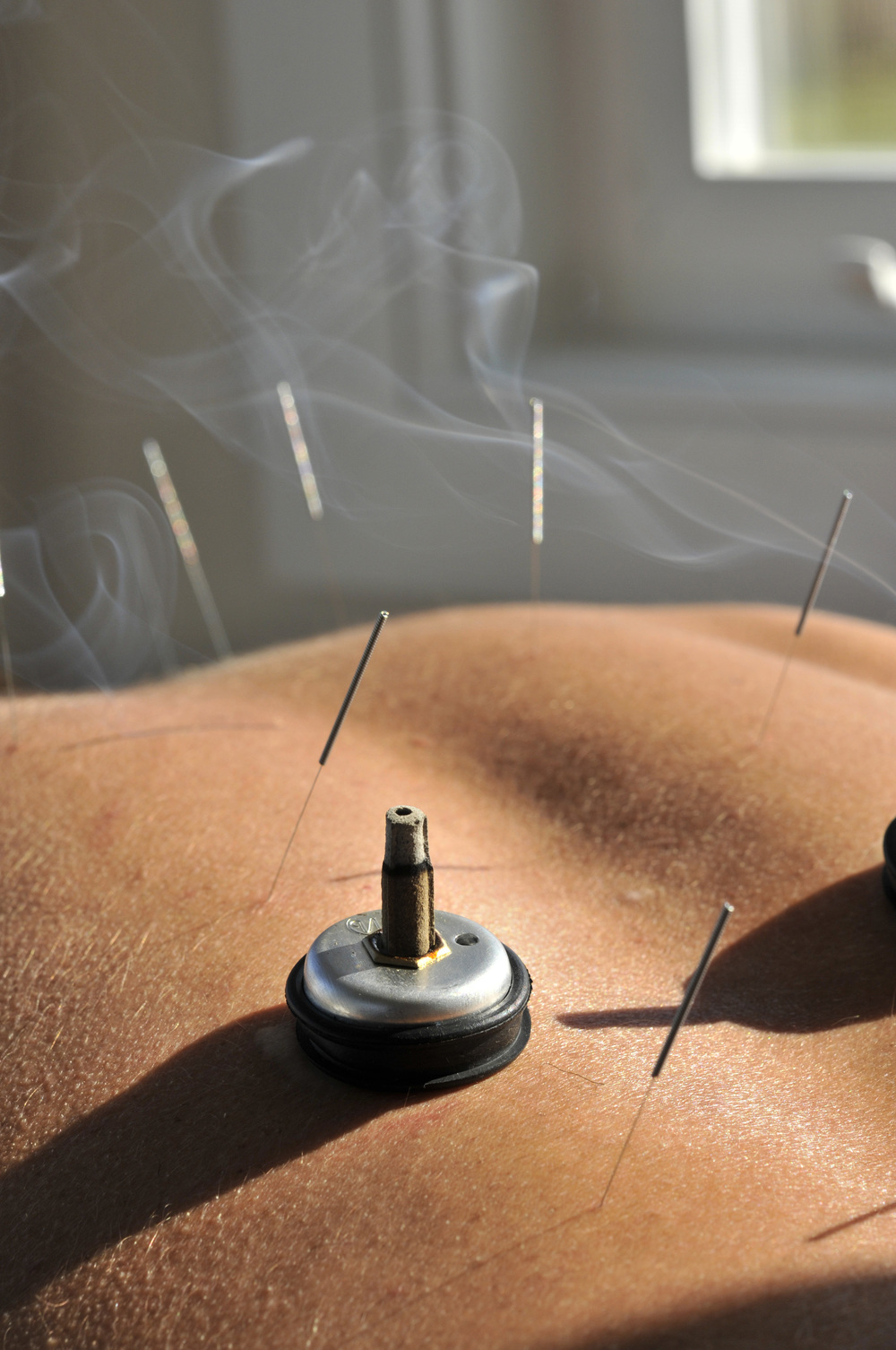 Acupuncture treatment with Moxibustion