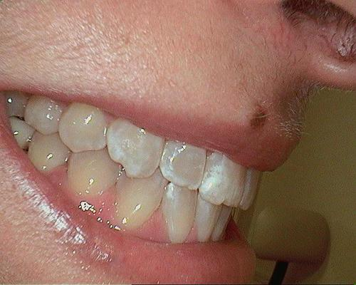 My teeth pre-whitening.