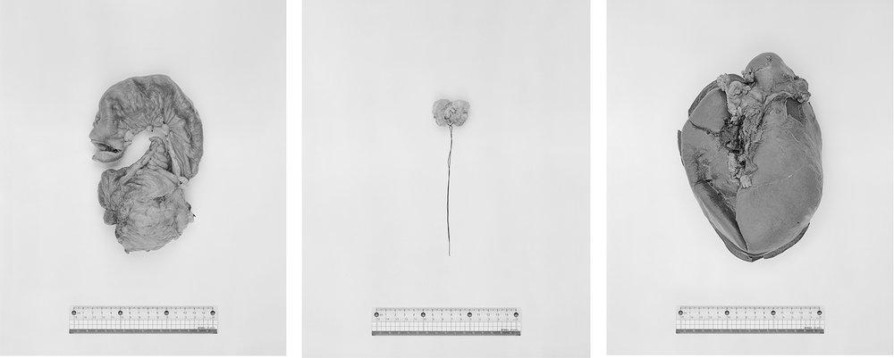 Li Zhaohui-Specimen:Human Organs under a ruler-photography-of-china.jpg