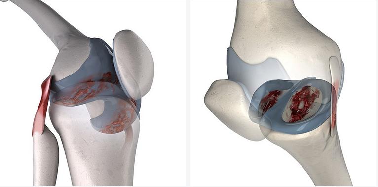 articularcartilage