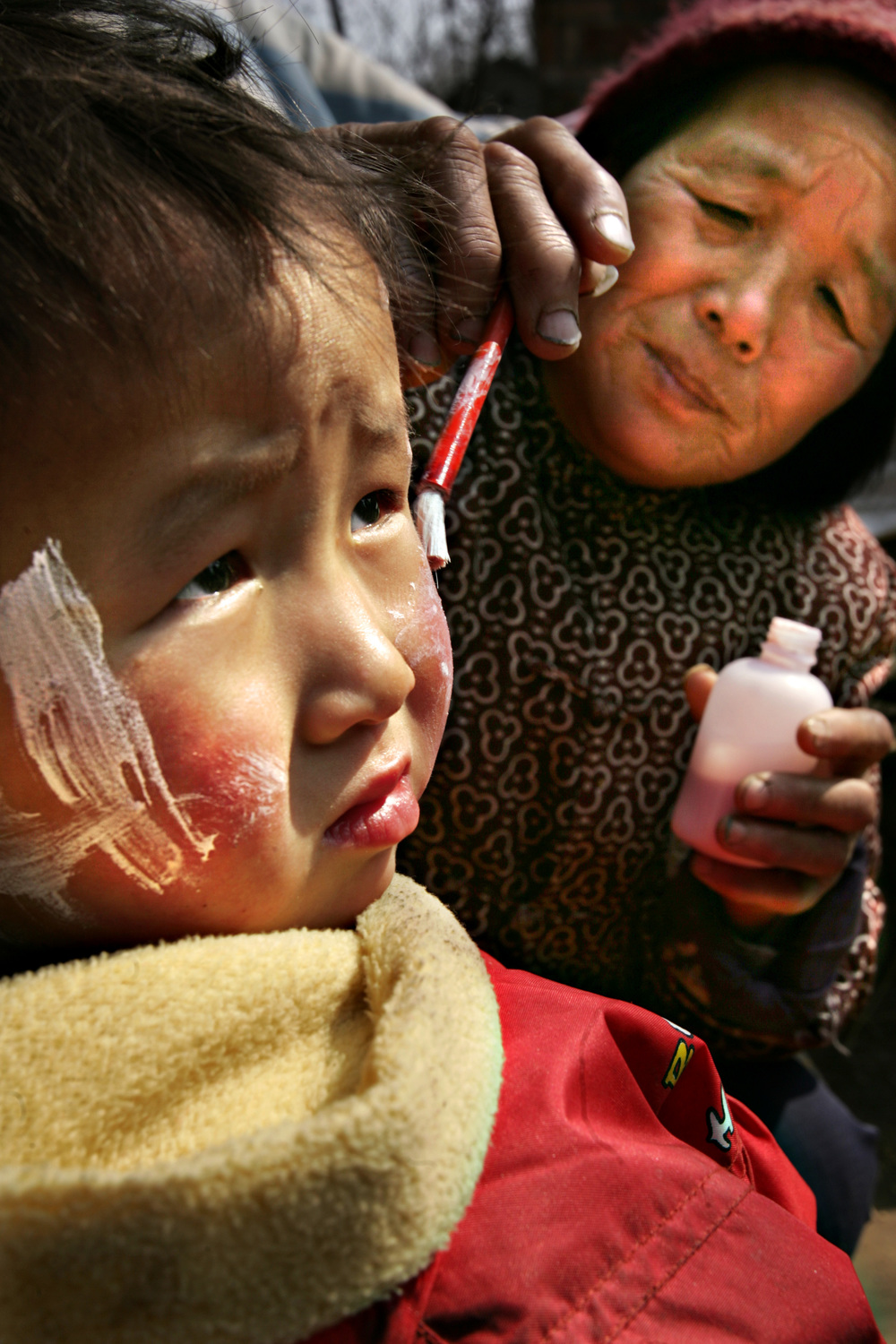 Jia Jiale has lotion applied to her face by her grandmother to treat rashes that have recently appeared. She has lived in other villages and never had any health problems but soon after she moved with her family to Sunying, she began developing itchy rashes all over her body.