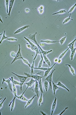 Image of prostate cells from a tissue culture under a microscope