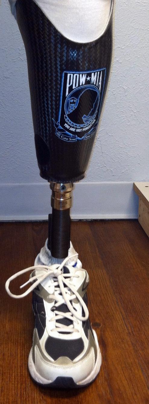 Prosthetic-Device-[F].jpg