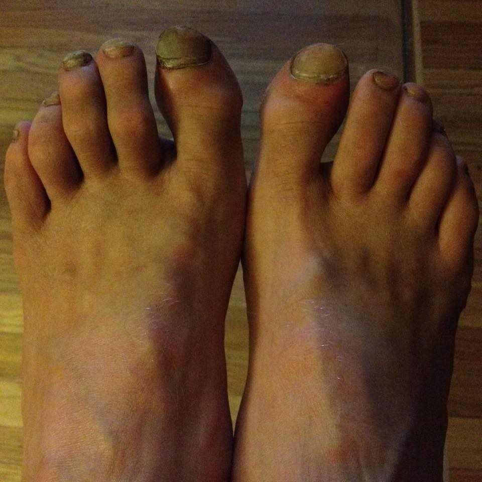 Toes – as of Monday evening.