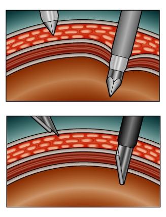PW Aorta.jpg