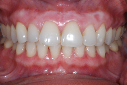 Here the patient is seen following completion of both the upper and lower arches