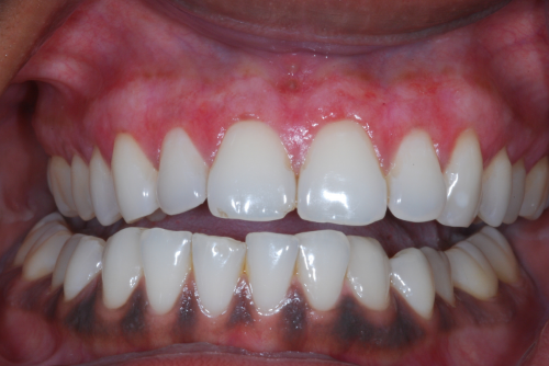 Here the patient is seen at less than 1 week following the upper being completed.