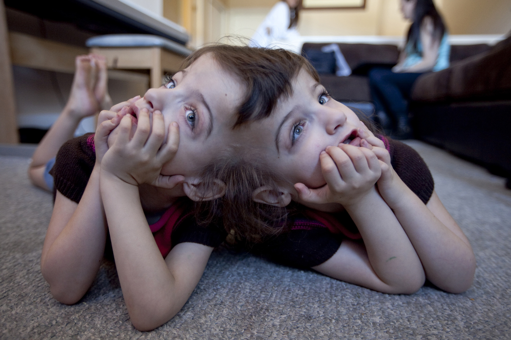 Conjoined twins Tatiana and Krista Hogan watch Miley Cyrus in their grandma's living room in Vernon, B.C.