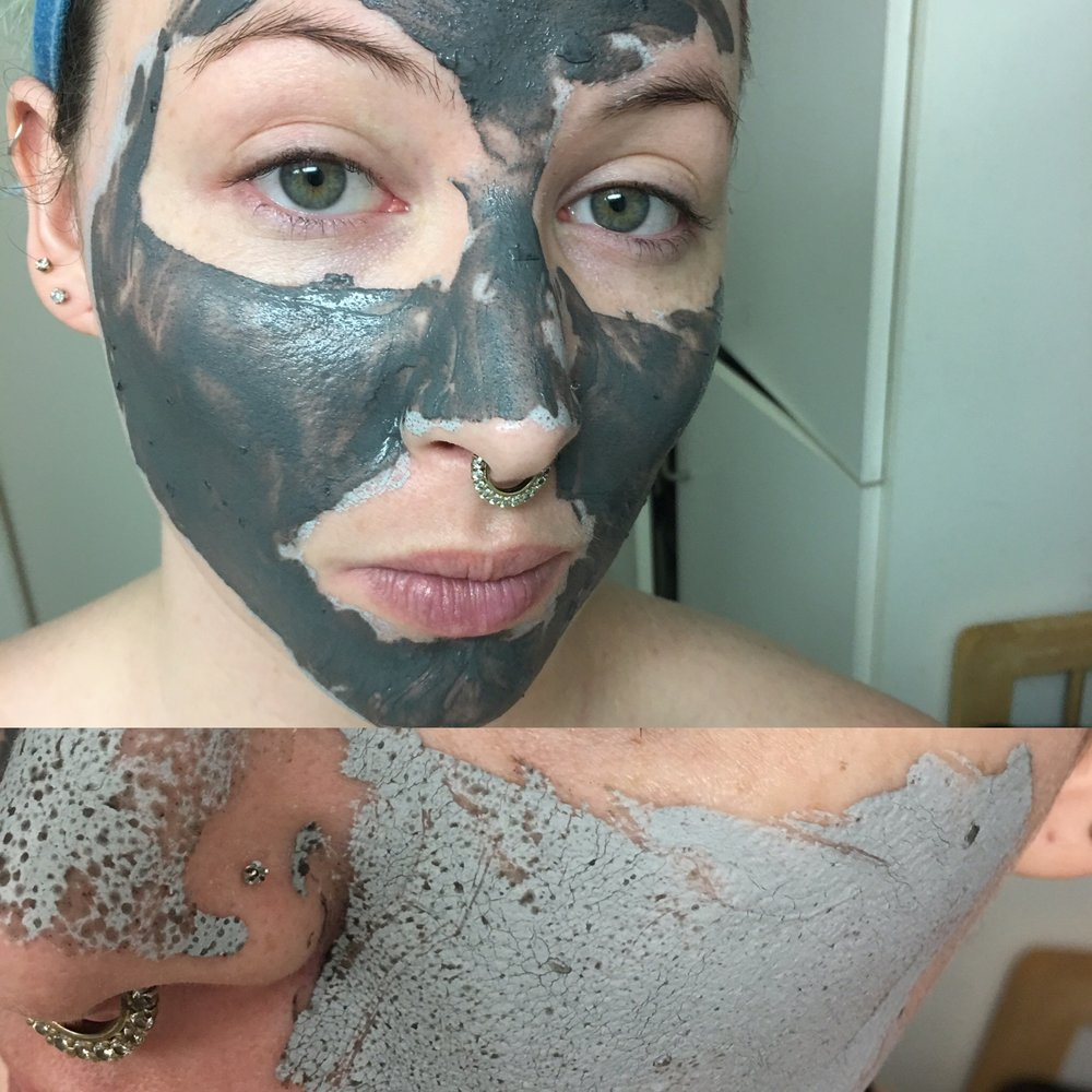 Wet v. Dry  the dark spots in the dry pic are the gross impurities the mask draws out