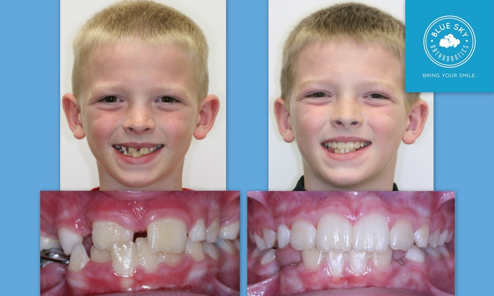 Phase I crossbite correction