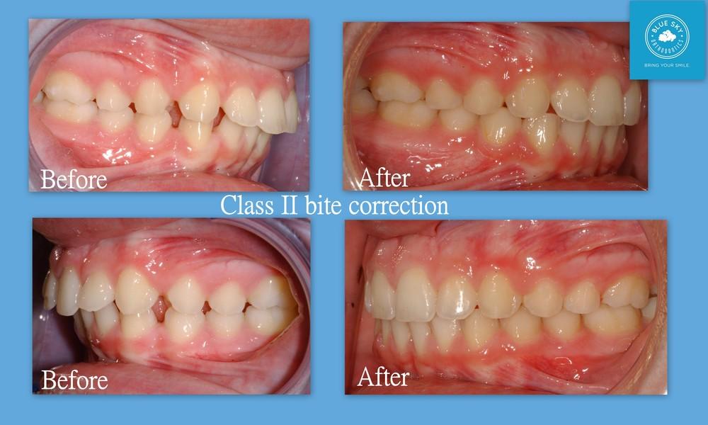 J.S. bite horizontal.jpg