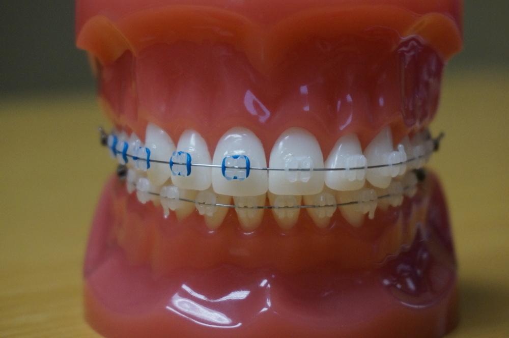 Photos of Braces Colors Clear