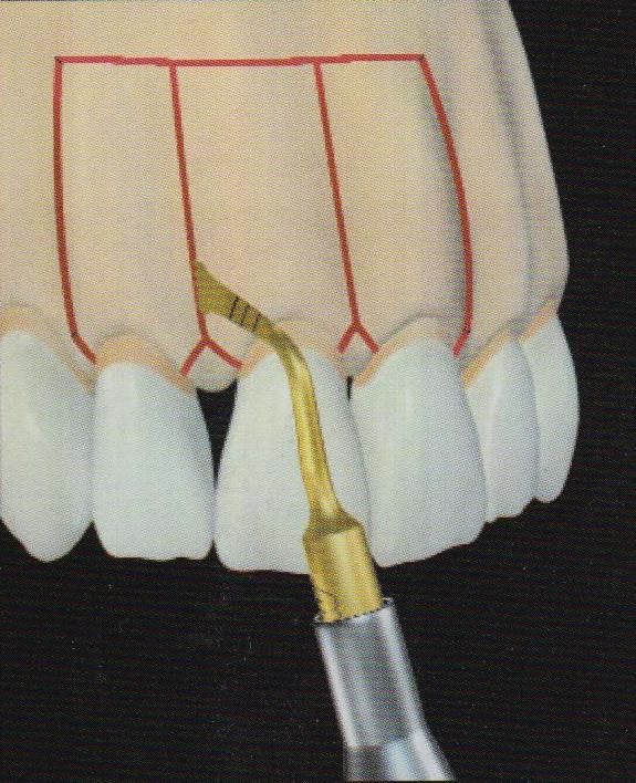 Corticotomies verticales, noter l'incision en ''Y'' au niveau du collet des dents. avec l'appareil Mectron – piezosurgery, (Vercelotti)