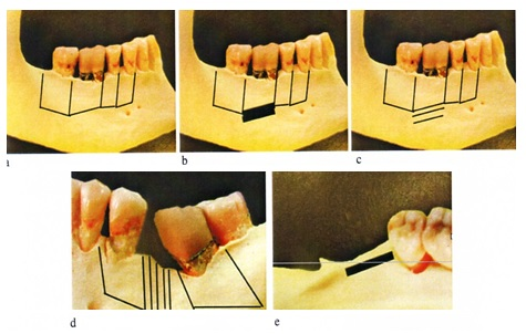 Schémas de différentes corticotomies en fonction du mouvement recherché;    a: alignement, b: ingression, c: égression, d: fermeture d'espace, e: distalisation molaire, (schémas:JL Béziat, 2010).