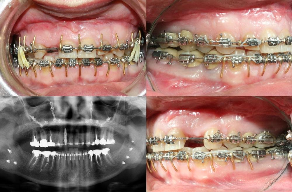 Orthodontie rapide - cas1.4 - apnee du sommeil.jpg