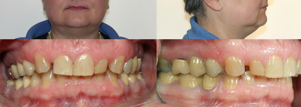 Orthodontie rapide - cas1.0.2 - apnee du sommeil.jpg
