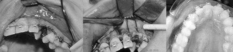 Canine maxillaire retenue en dystopie palatine, avulsion de la 63 suivie des corticotomies, la dent est mise sous traction orthodontique et nivelée quatre mois plus tard. (chir:PJaby, AG Chaux-Bodard)