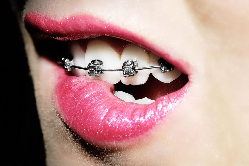 Braces are not for geeks.png