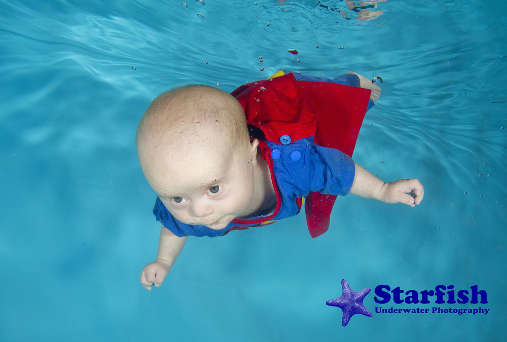 William Jones at 4 months, swimming underwater, two days before going into hospital for open heart surgery. His mum Susan thinks he's a Superman for surviving everything he has been through.