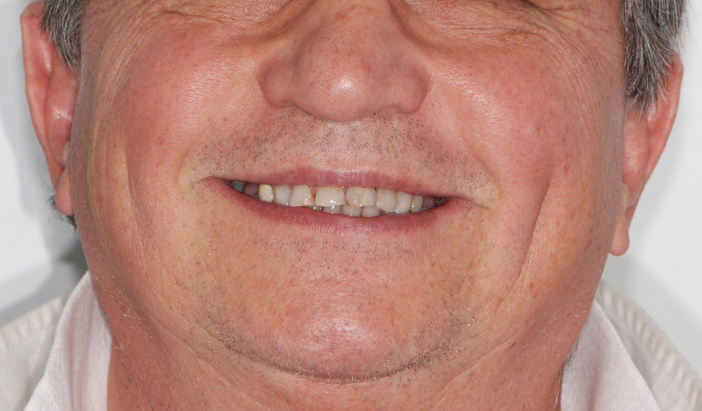 Smile before Extreme Makeover