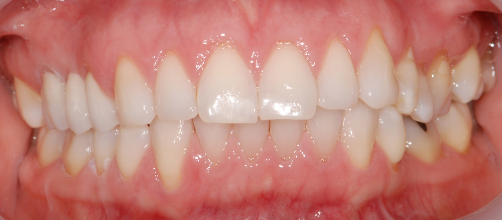 This patient has had a bridge to replace a missing tooth. Can you see where?