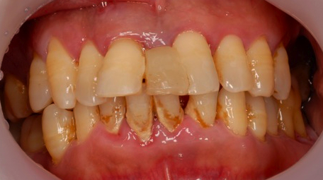 Intraoral photo of a patient with chronic periodontitis (courtesy of Dr. Kevin Morris)