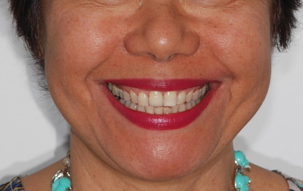 Smile with implant replacement