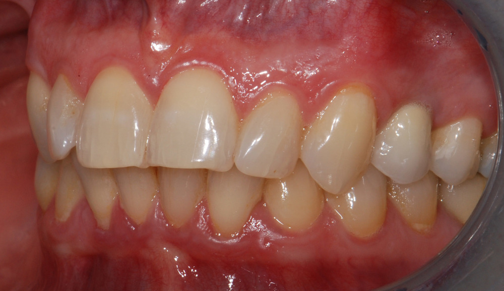 Replacement of missing tooth (side view)