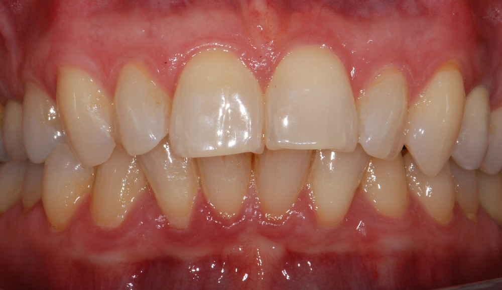 Replacement of missing tooth (frontal view)