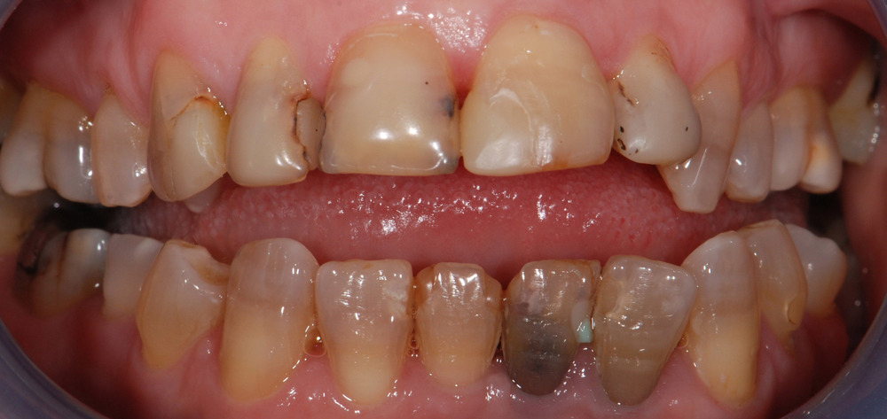 Teeth before Makeover