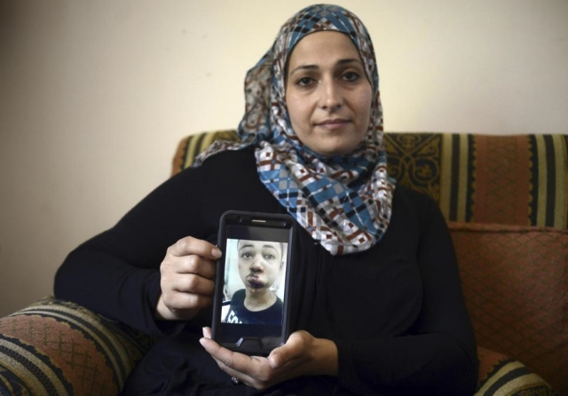 A mother holds her son, Tariq Abu Khdeir (15), after he was  detained and severely beaten  by Israeli soldiers in July. Tariq is an Arab-American and U.S. citizen. He had returned to the region for a vacation.  Photo: Mahmoud Illean/AP.