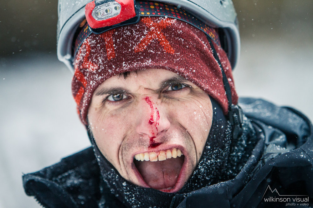 Ice climber Matt Cox gets a rush from taking some ice shards to the face.