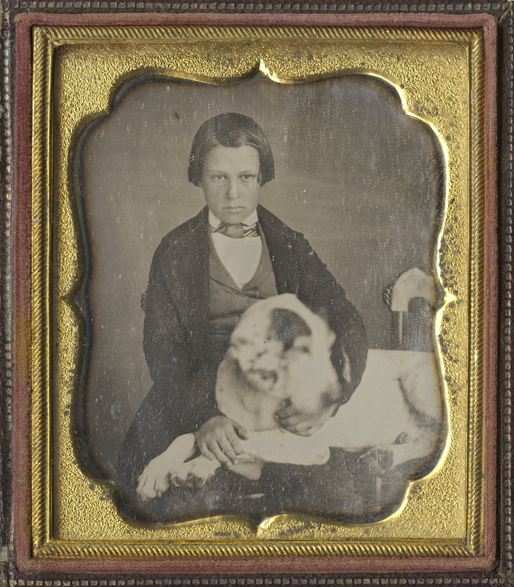 Portrait of a Boy with his Large Dog Reclining Across His Lap